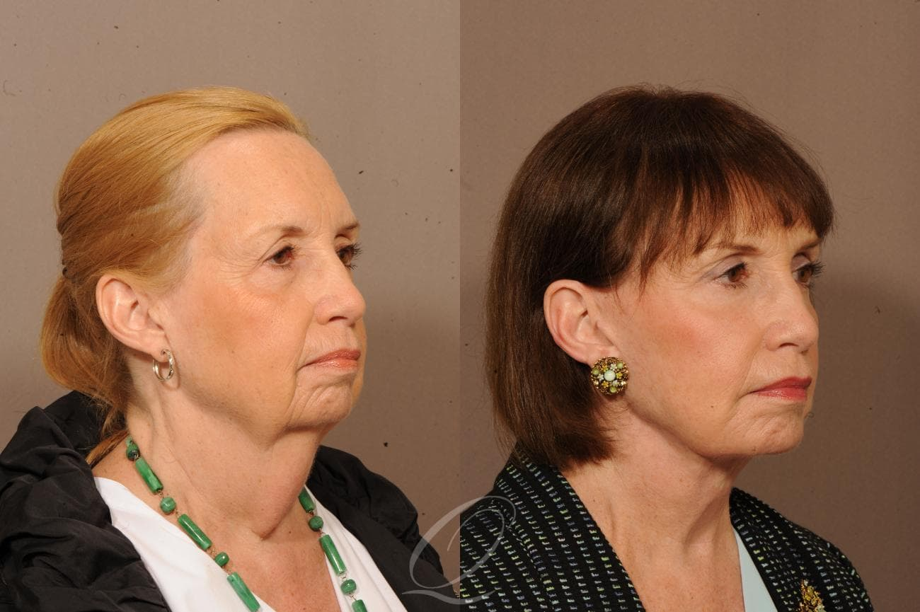 Facelift Case 1233 Before & After View #2 | Rochester, NY | Quatela Center for Plastic Surgery