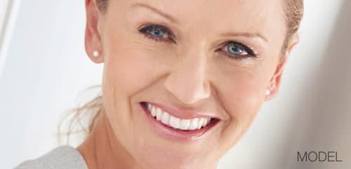 Facelift model smiling