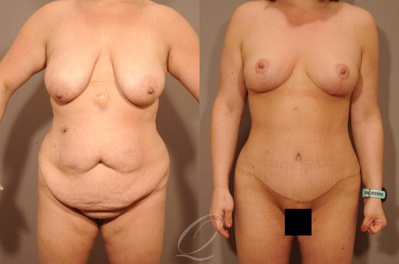 Mommy Makeover Case 1236 Before & After View #1 | Rochester, NY | Quatela Center for Plastic Surgery